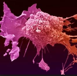 Investing In Cancer Immunotherapy Companies Nanalyze