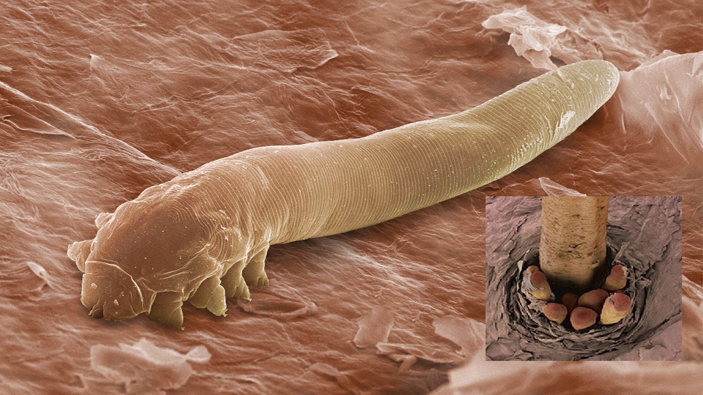 The harmless mite Demodex folliculorum, seen here in an electron microscope image, lives in the follicles of eyelashes